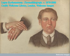 Lupus Erythematosus. Chromolithograph. c. 1878-1888 Credit: Wellcome Library, London. Wellcome Images