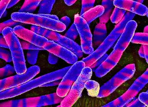 E. coli Bacteria Colorized scanning electron micrograph of Escherichia coli, grown in culture and adhered to a cover slip.